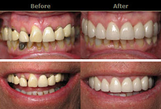 Cosmetic Dentistry & Smile Make Overs