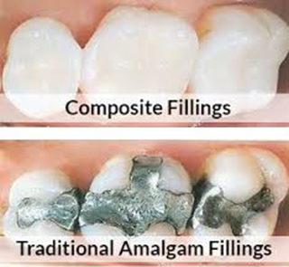 Dental Fillings (Cavity Correction)