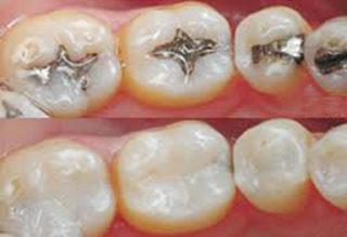 Dentalfillings