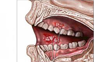 Oral Cancer & Lesion Detection