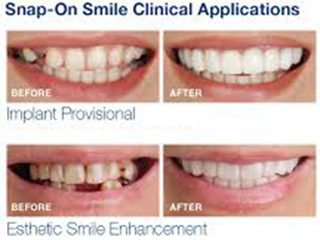 Snap On Smile Now